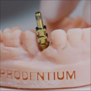prodentium scansione impronta su impianti con Scanner dentale